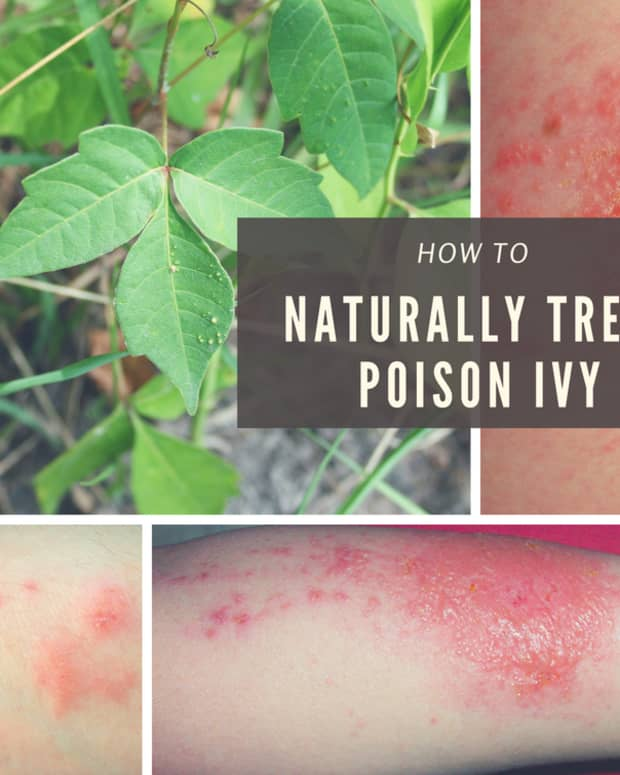 natural-cure-to-poison-ivy