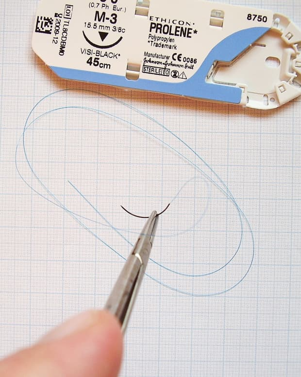 a-stitch-in-time-medical-and-surgical-sutures-today-and-in-history