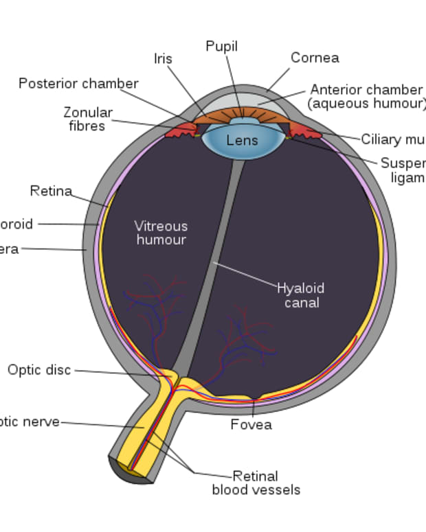 symptoms-of-eye-cataracts-are-you-losing-your-vision