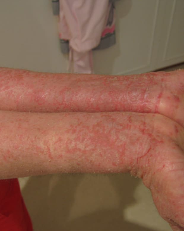 how-to-get-rid-of-eczema-fast