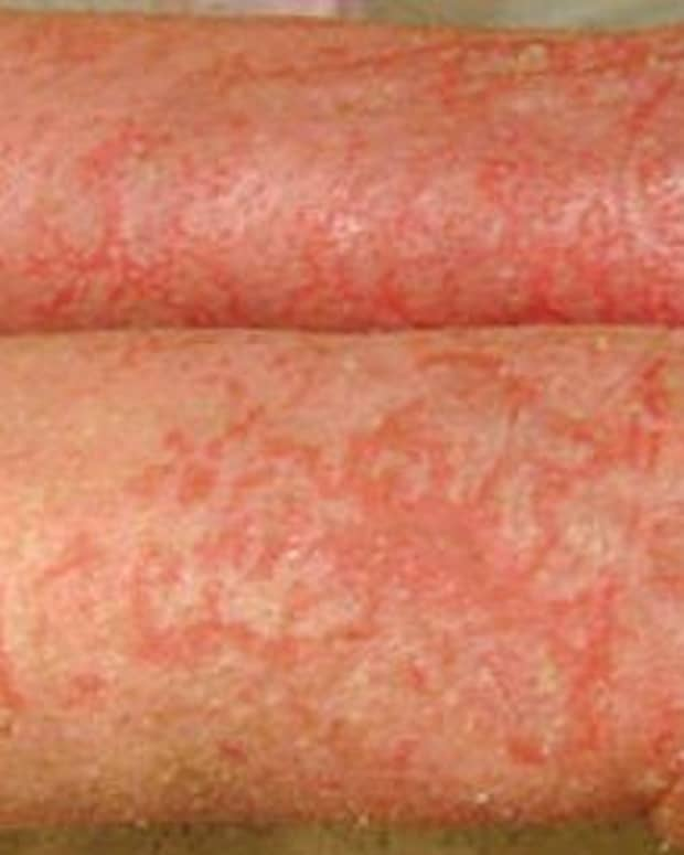 how-i-cured-my-eczema-no-more-itching-blisters-and-weeping-skin