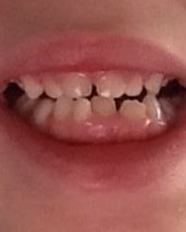 what-to-do-when-your-young-child-needs-teeth-pulled-out