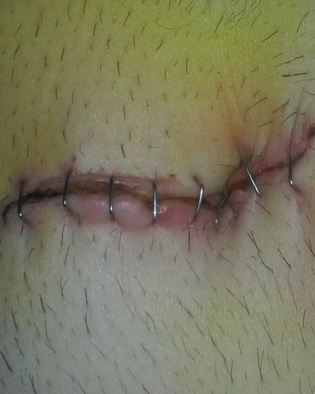 recovering-from-laparoscopic-surgery