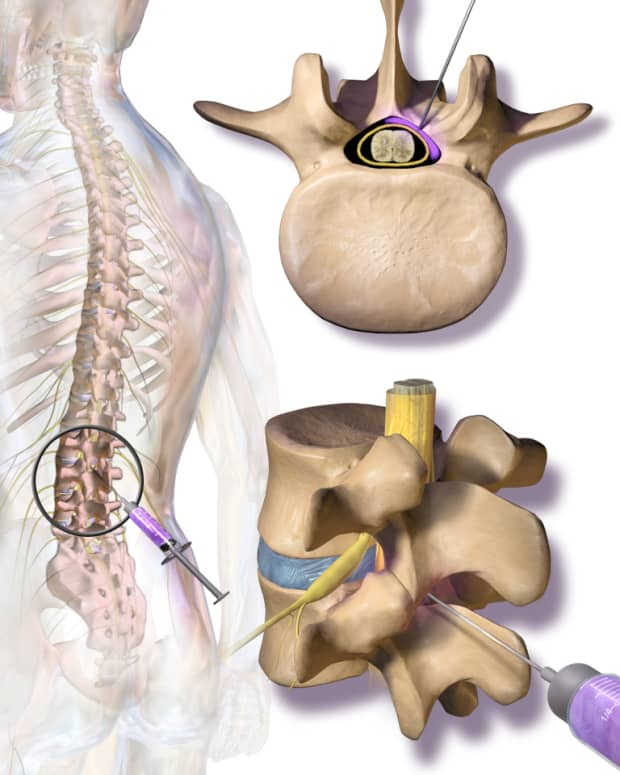 lumbarcervical-epidural-steroid-injections-a-treatment-for-pain-related-to-disc-disease