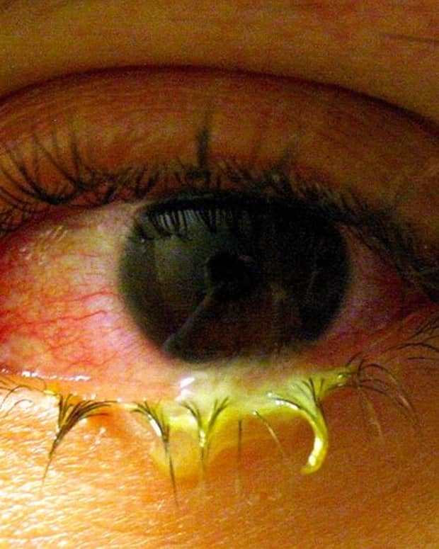 what-is-pink-eye-causes-symptoms-and-treatment