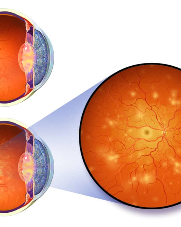how-does-diabetes-cause-blindness