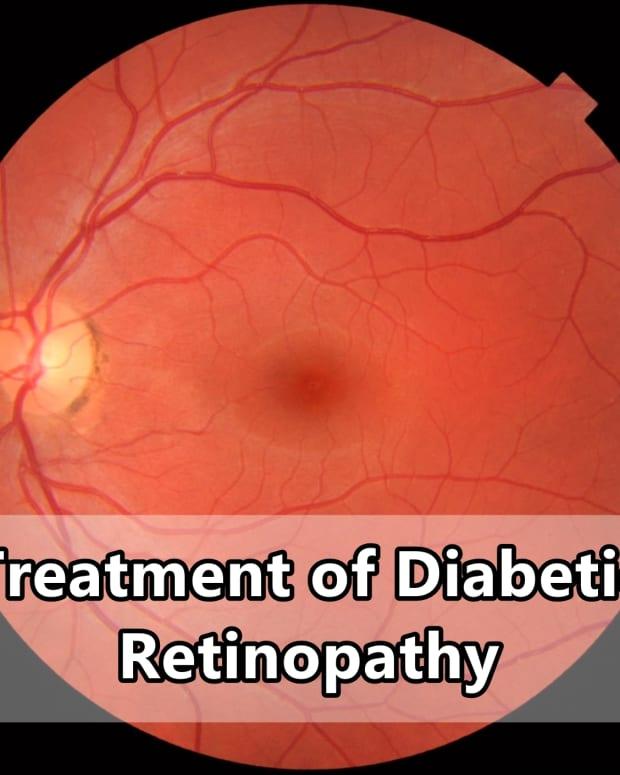 treatment-of-diabetic-retinopathy