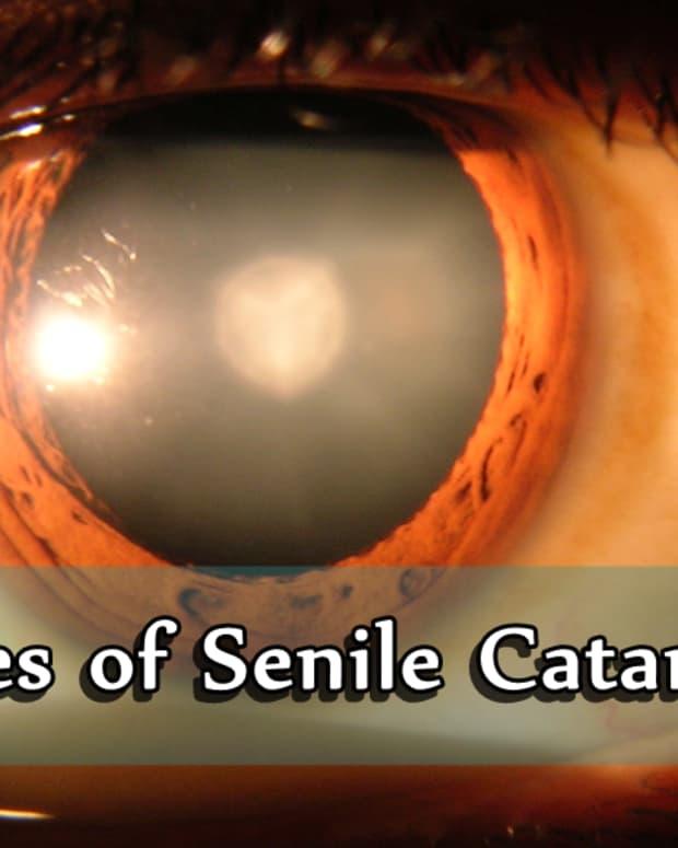types-of-senile-cataracts