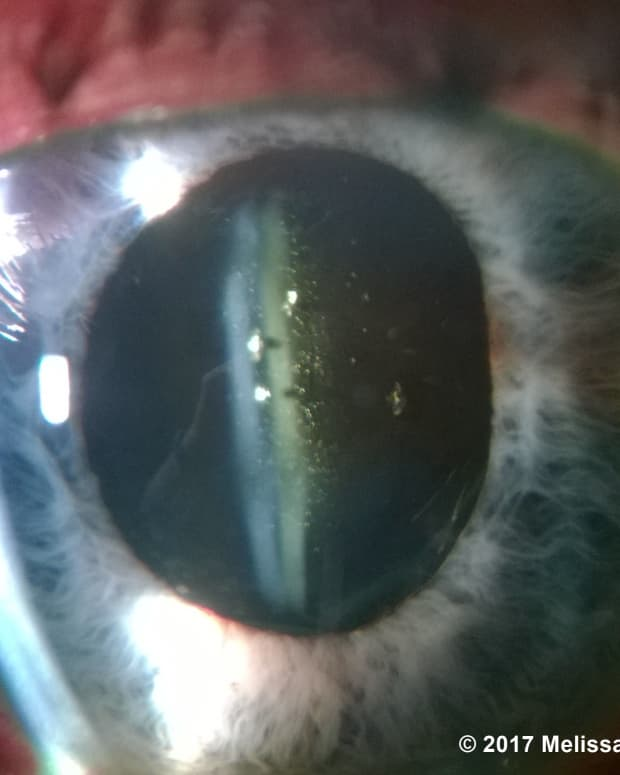 how-to-become-an-ophthalmic-technician