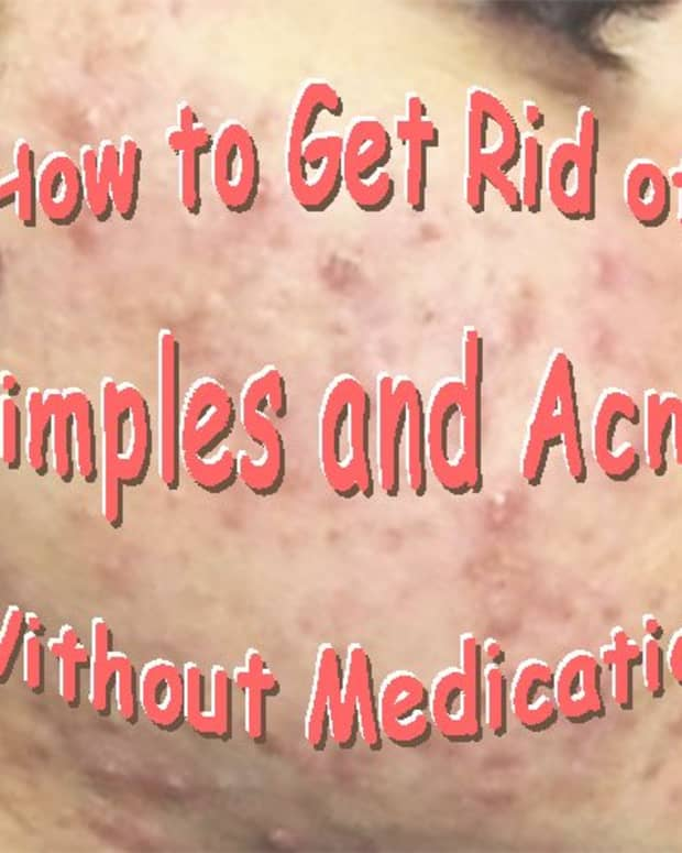 how-to-get-rid-of-skin-problems-hair-raising-discovery-for-pimples-and-acne