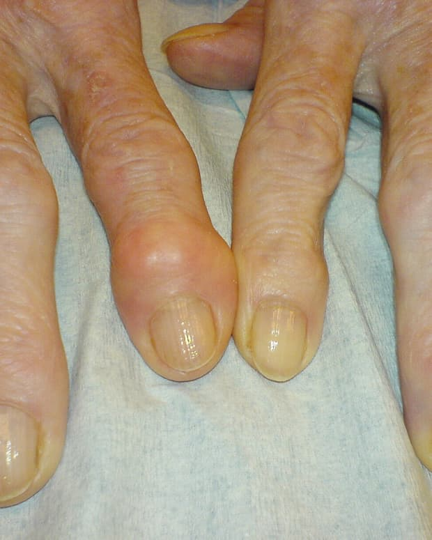 osteoarthritis-and-inflammation
