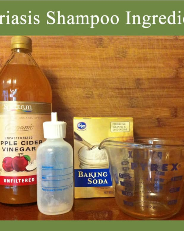 natural-psoriasis-shampoo-scalp-psoriasis-remedy