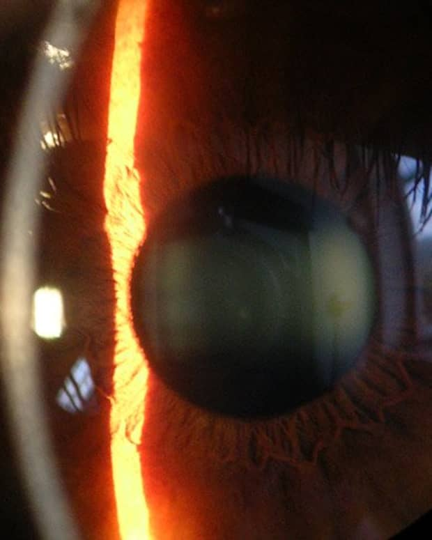 the-five-most-common-eye-problems-in-the-elderly