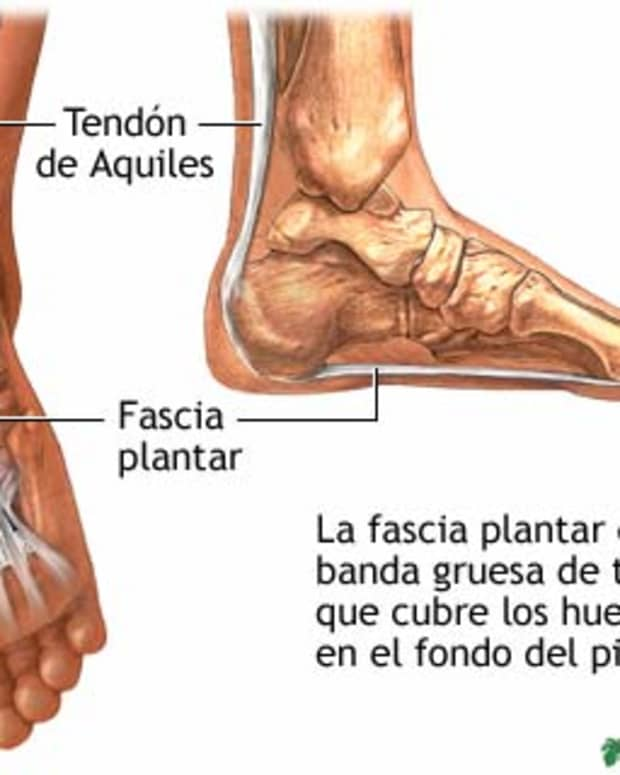 cure-your-plantar-fasciitis