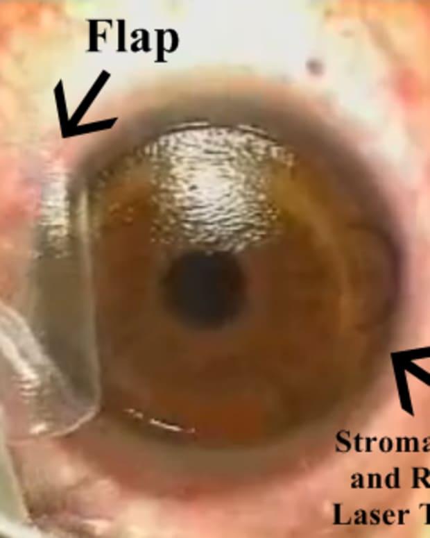 definition-of-lasik-vision-correction