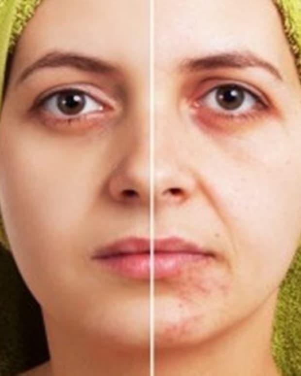 how-to-use-lightening-cream-to-lighten-skin-blemishes