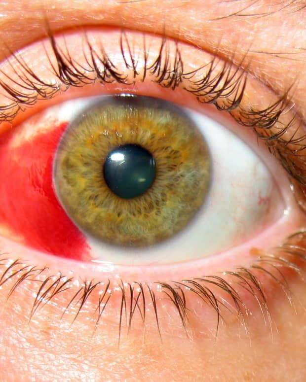healing-broken-blood-vessels-in-the-eye