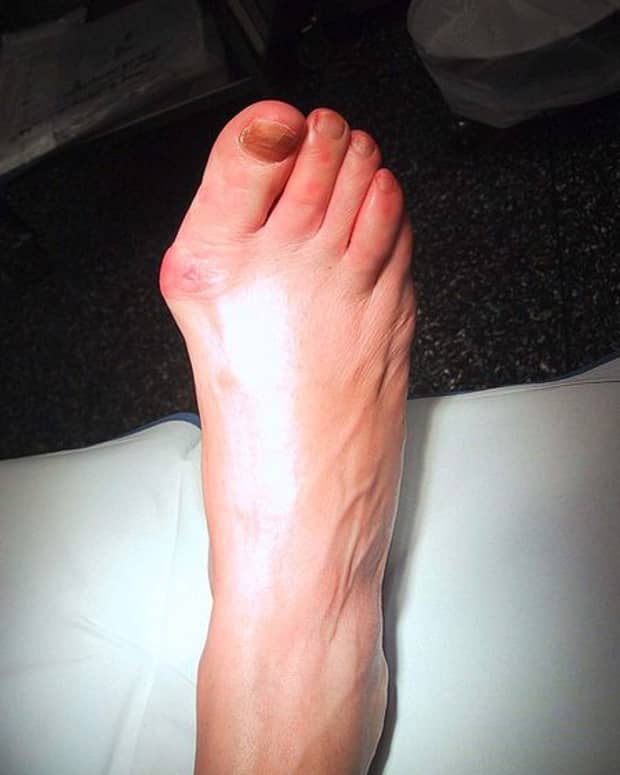 foot-exercises-and-foot-care-tips