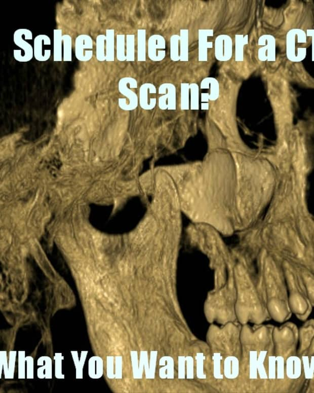 ct-scan-information