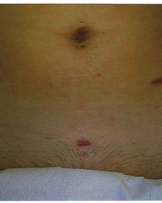 signs-of-apendicitis