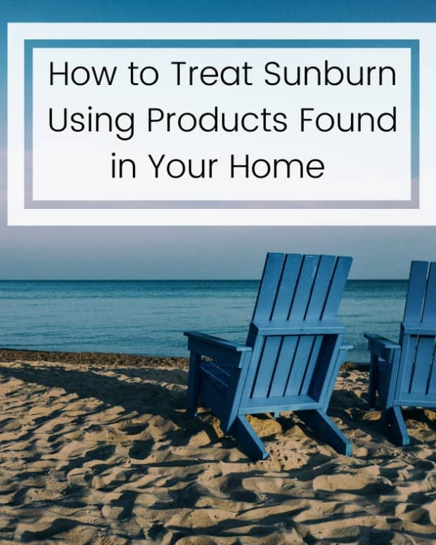 remedies-for-sunburn-relief
