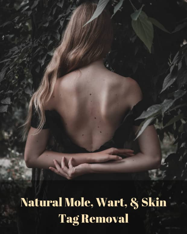 how-to-cure-warts-moles-and-skin-tags-with-castor-oil