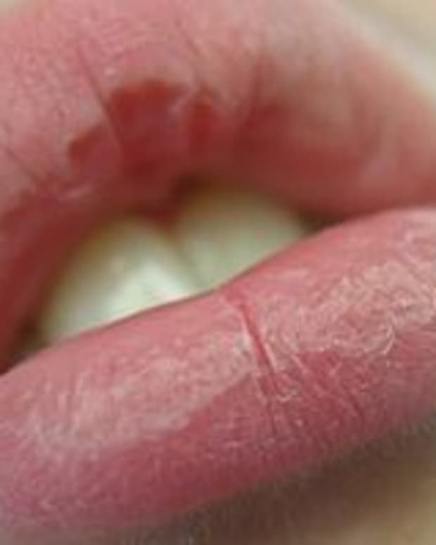 11-natural-ways-to-cure-dry-chapped-cracked-and-peeling-lips-with-homemade-remedies