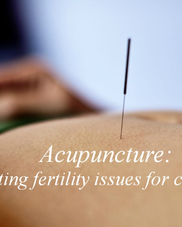 the-benefits-of-acupuncture-for-fertility-issues