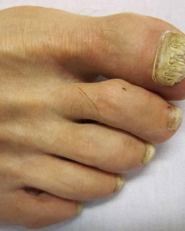 toenail-fungus-home-remedies-how-to-get-rid-of-toenail-fungus
