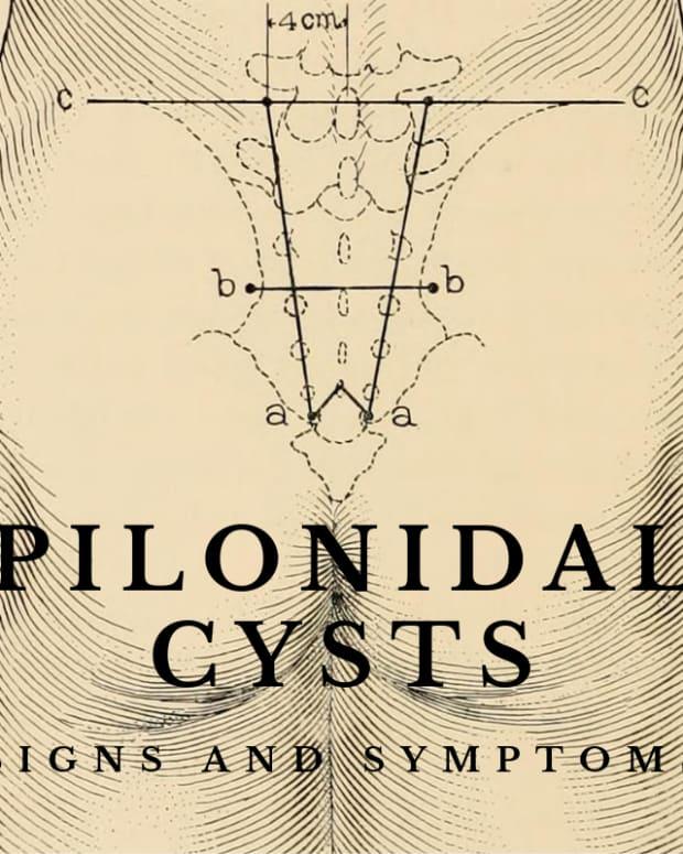 pilonidal-cyst-symptoms