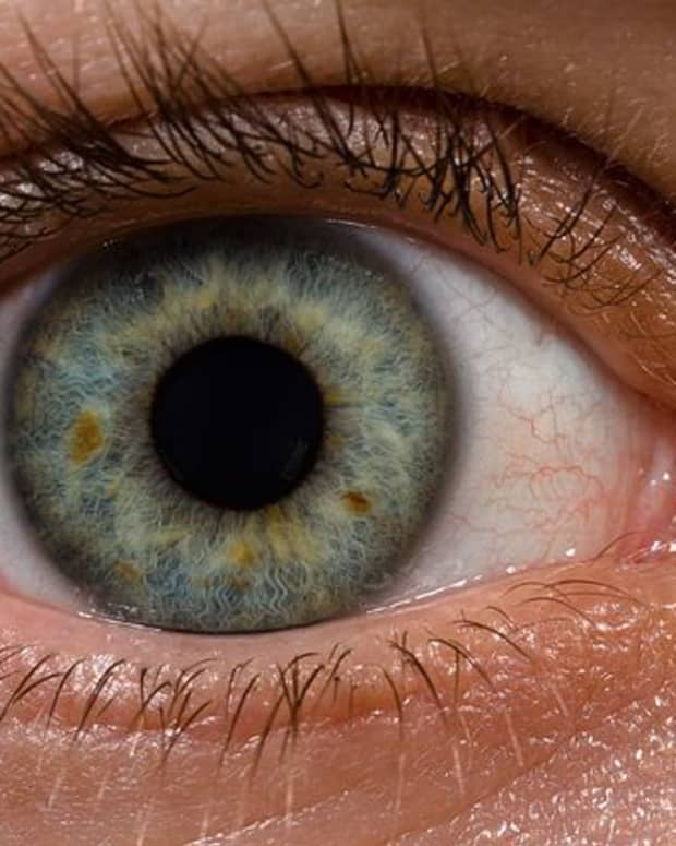 what-to-expect-with-cataract-surgery