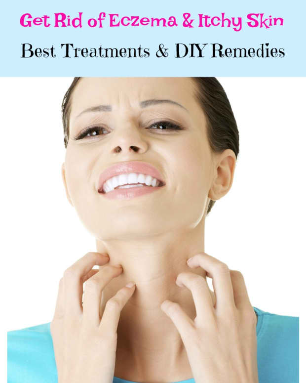 natural-cures-remedies-and-treatments-for-eczema-on-the-face-and-body
