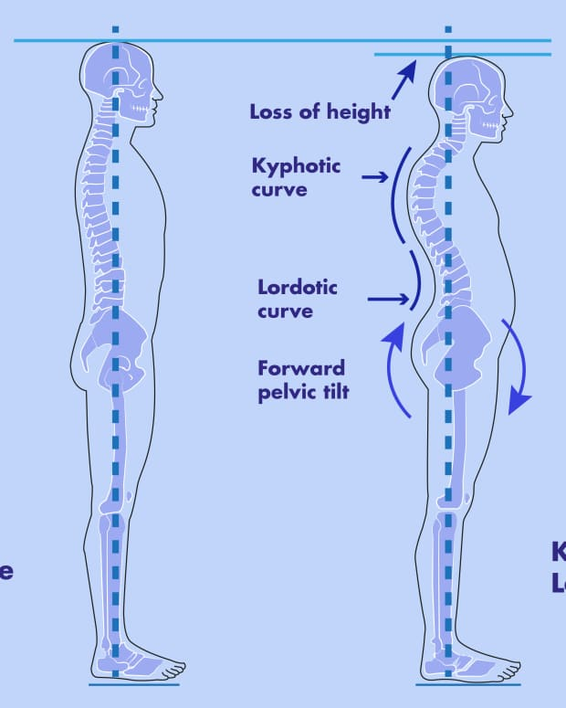 the-importance-of-reversal-of-cervical-lordosis