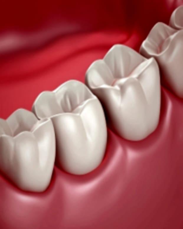 wisdom-teeth-recovery-tips