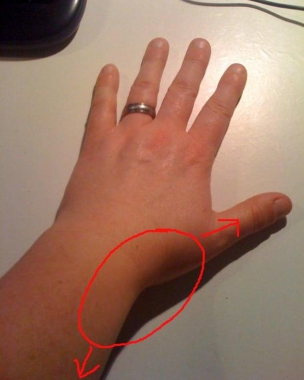 my-wrist-hurts-when-i-move-my-thumb