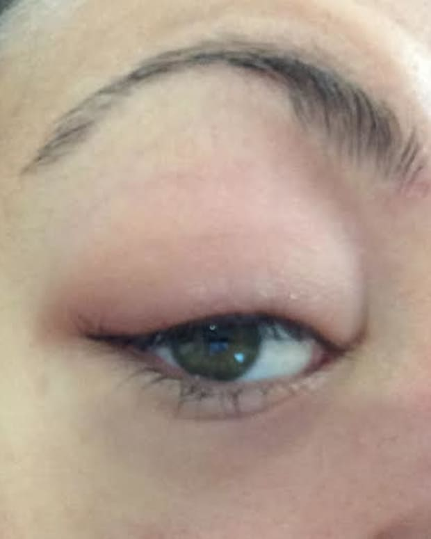 puffy-swollen-red-eye-lids-how-to-treat-blepharitis
