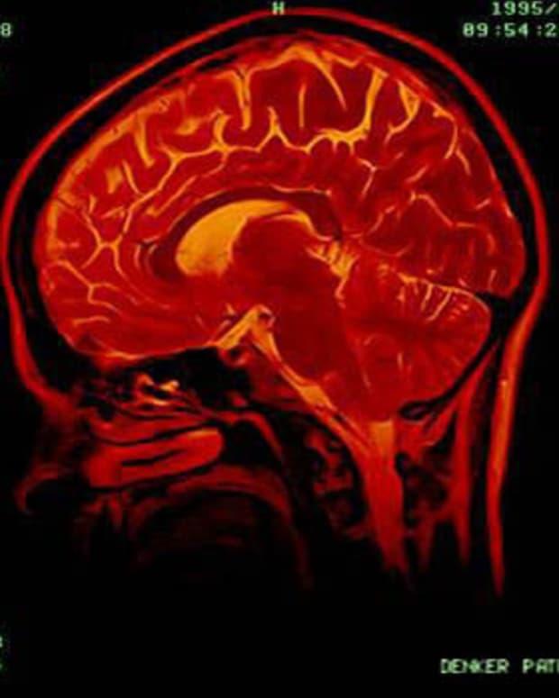 inside-a-psychopaths-brain