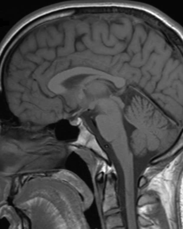 what-we-know-so-far-about-epilepsy