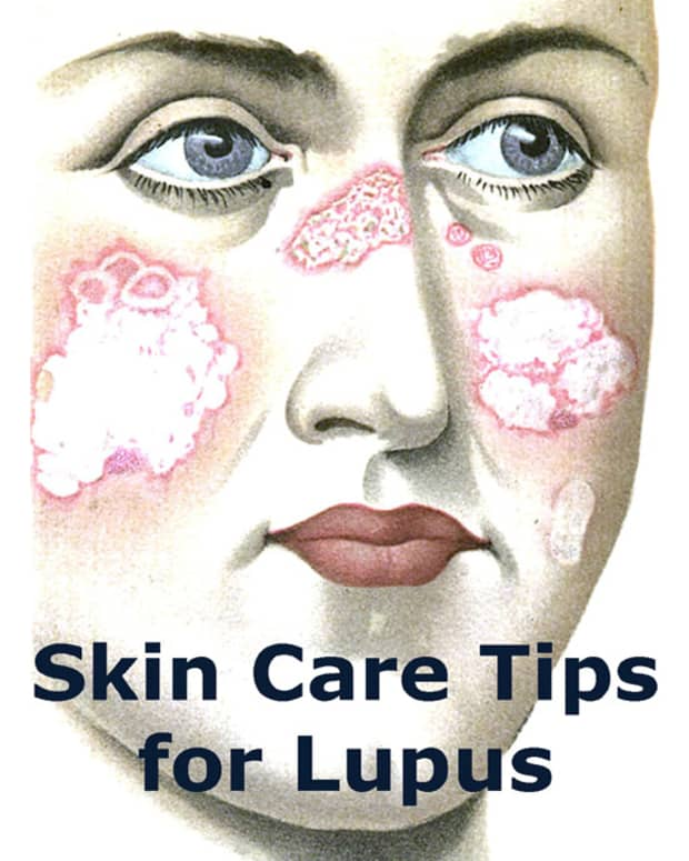 lupus-skin-care-tips