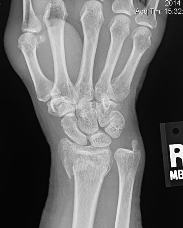 my-broken-wrist-experience