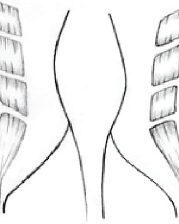 post-partum-diastasis-recti