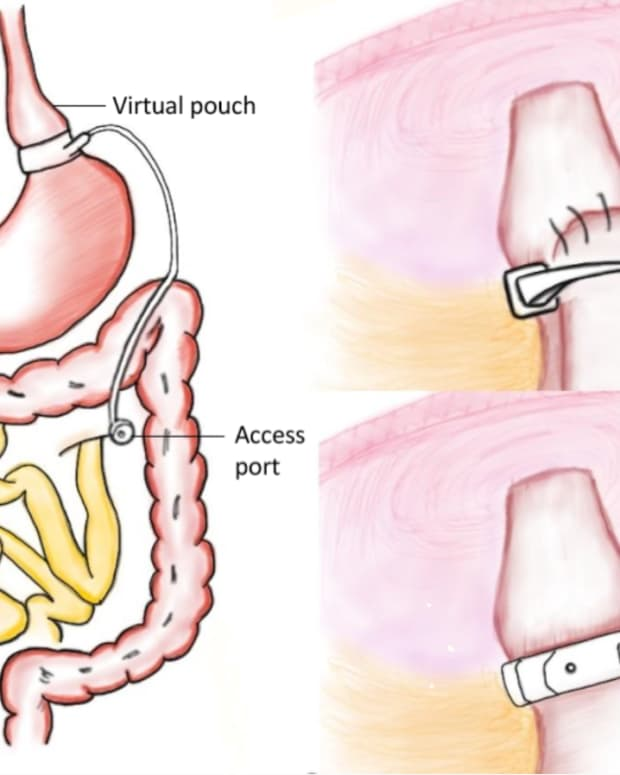 bariatric-surgery-procedures