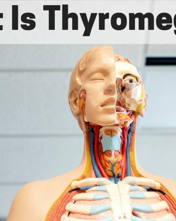 thyromegaly