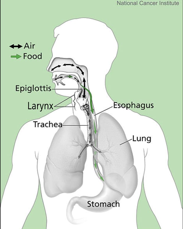 maybe-its-not-allergies-post-nasal-drip-and-cough-can-be-signs-of-reflux