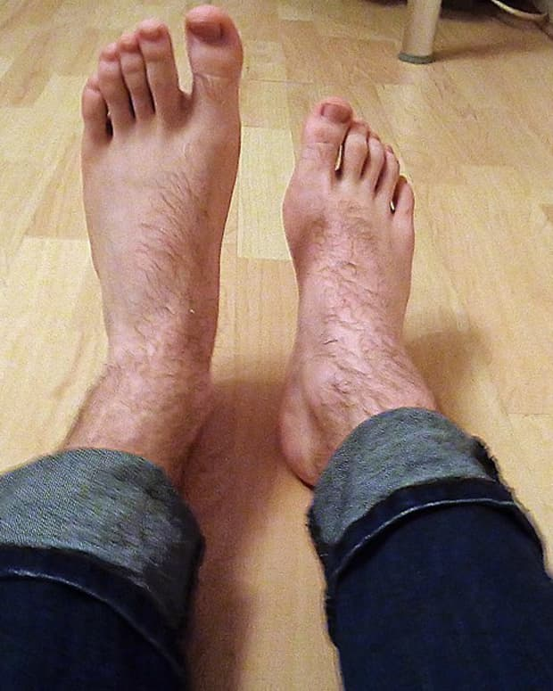living-with-foot-drop