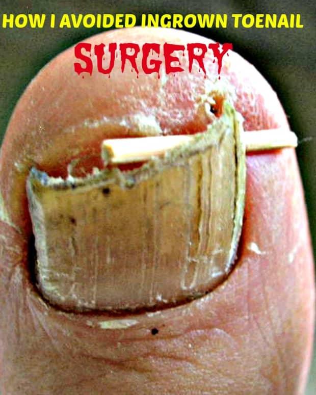 how-to-avoid-ingrown-toenail-surgery