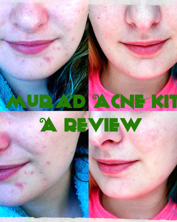 60-day-challenge-review-of-murad-30-day-acne-starter-kit