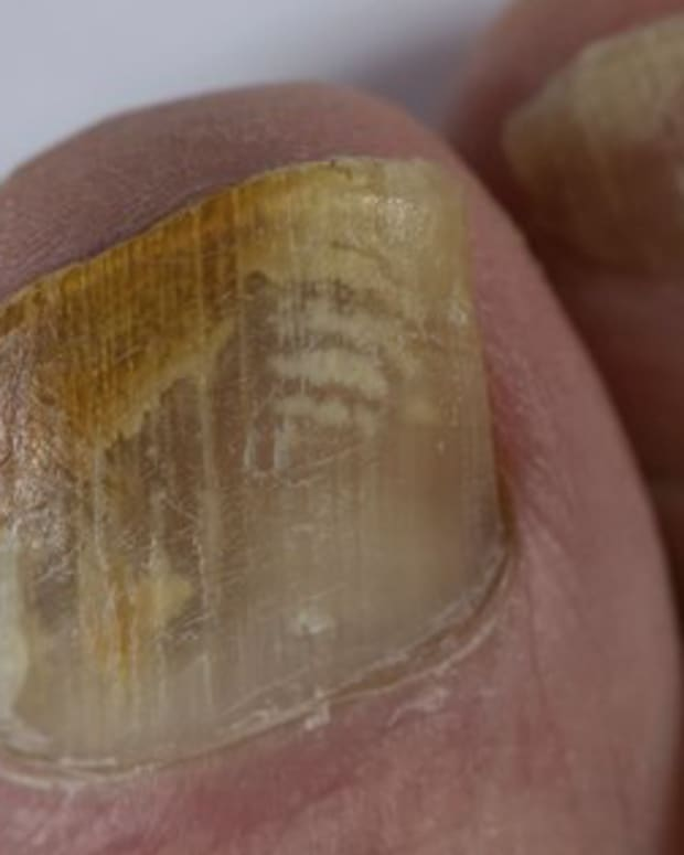 how-to-treat-a-fungal-nail-infection-using-tea-tree-oil