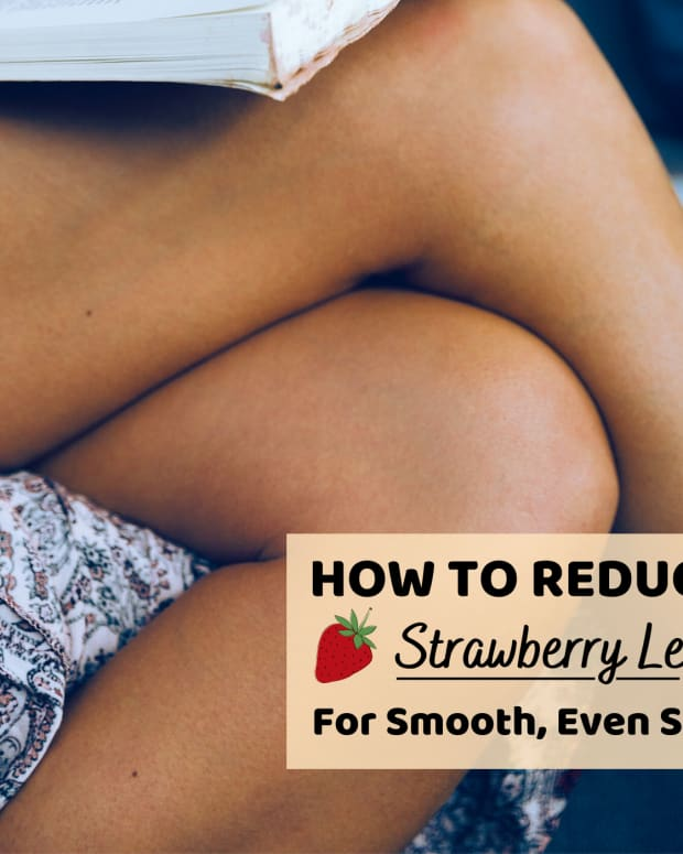 beautybenefits-how-to-remove-strawberry-legs