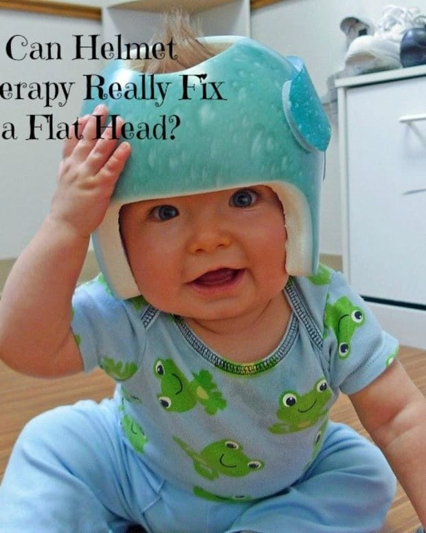 cranial-helmet-therapy-for-babies-does-it-actually-fix-a-flat-head